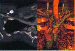 Thorax - Abbrerrant artery Suppressing oesophagus and trachea