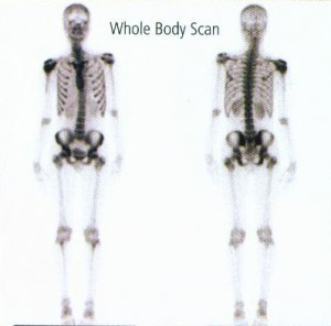 Whole Body Scan